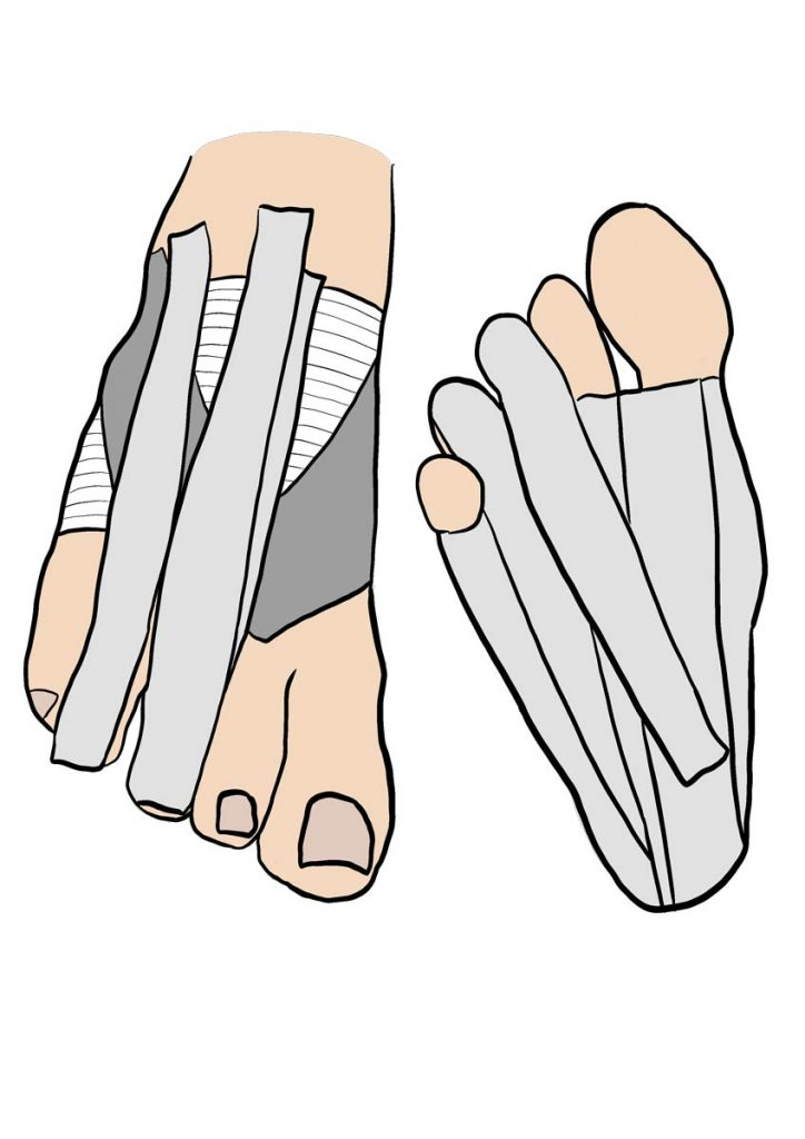 strapping fracture orteil